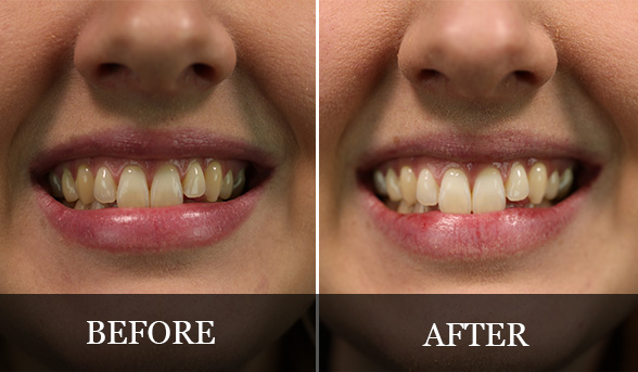 How To Get Whiter Teeth With Coconut Oil Beautyheaven