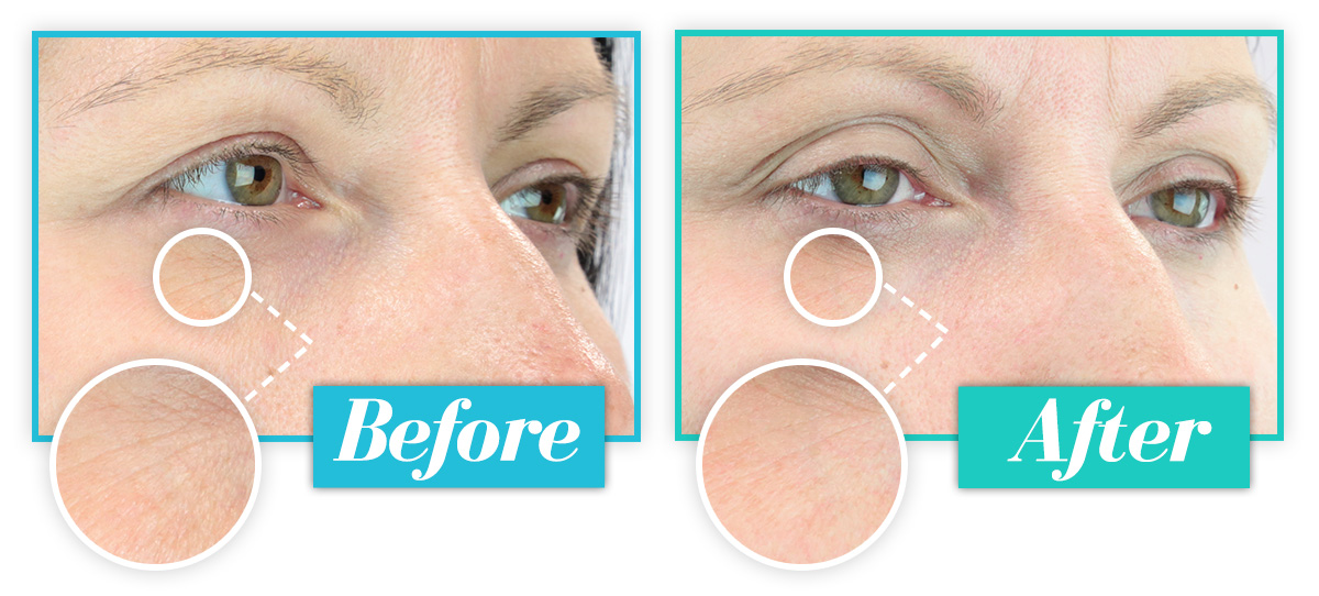 How To Reduce Signs of Ageing Around Eyes