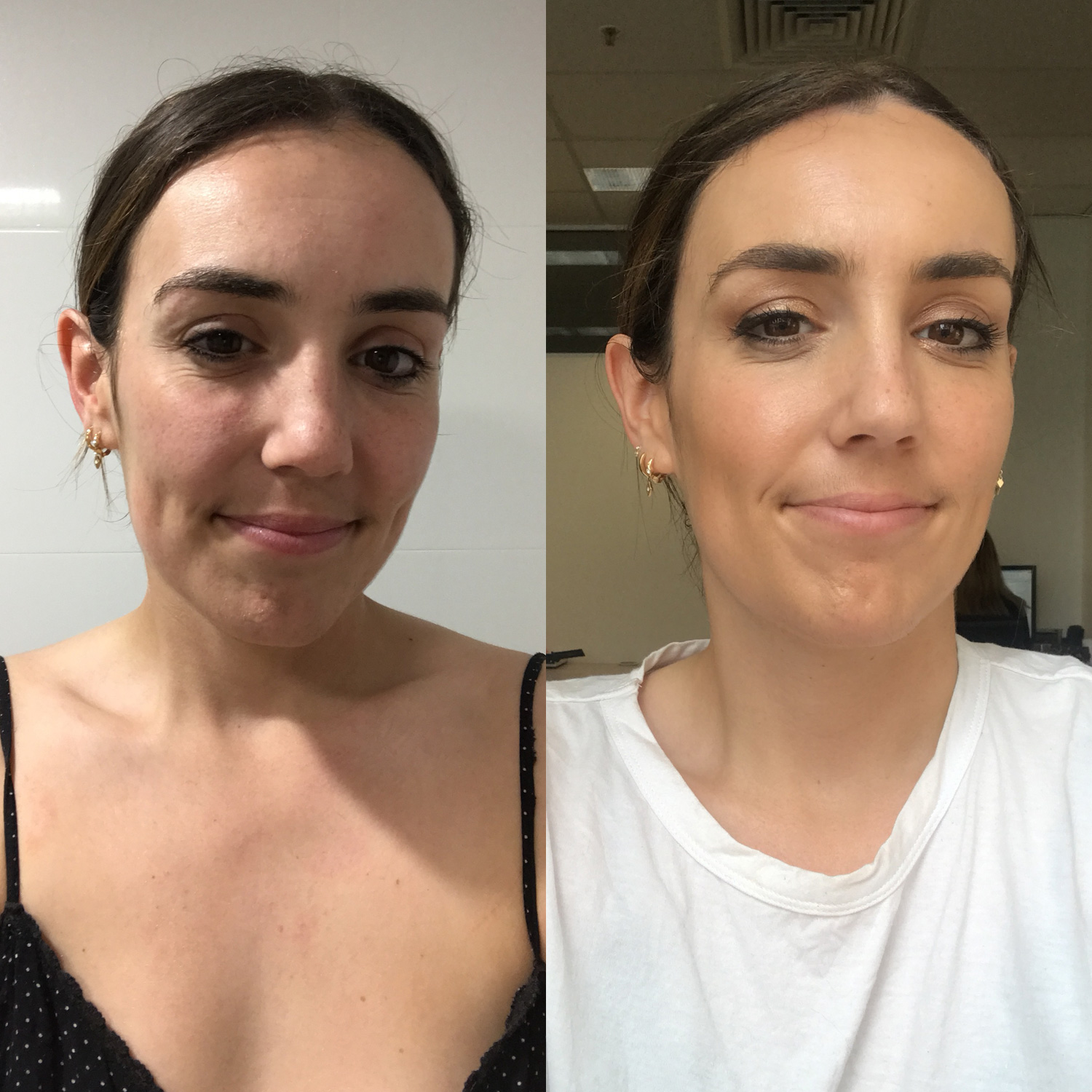 facial-peel-before-and-after-sex