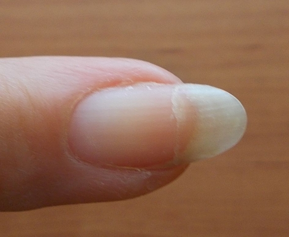 Mending A Cracked Nail